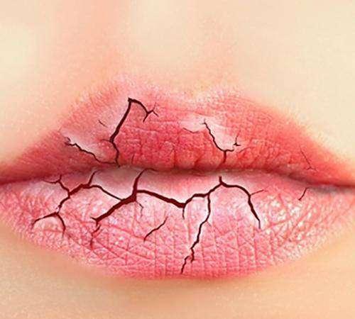 你知道为什么冬天你的嘴唇就干裂出血吗