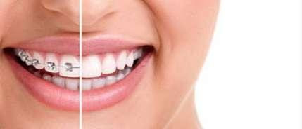 女性牙齿矫正后该怎么做